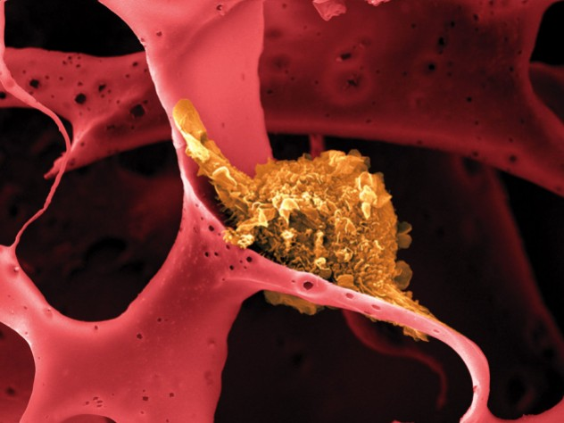 Image shows a dendritic cell (shown in yellow) attached to a man-made polymer lattice inside a pill-sized implantable device.
